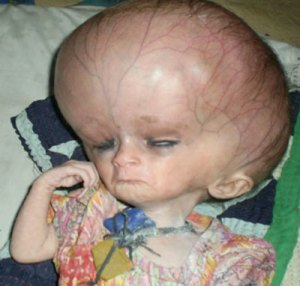 A child affected by malnutrition in Badin, Sindh